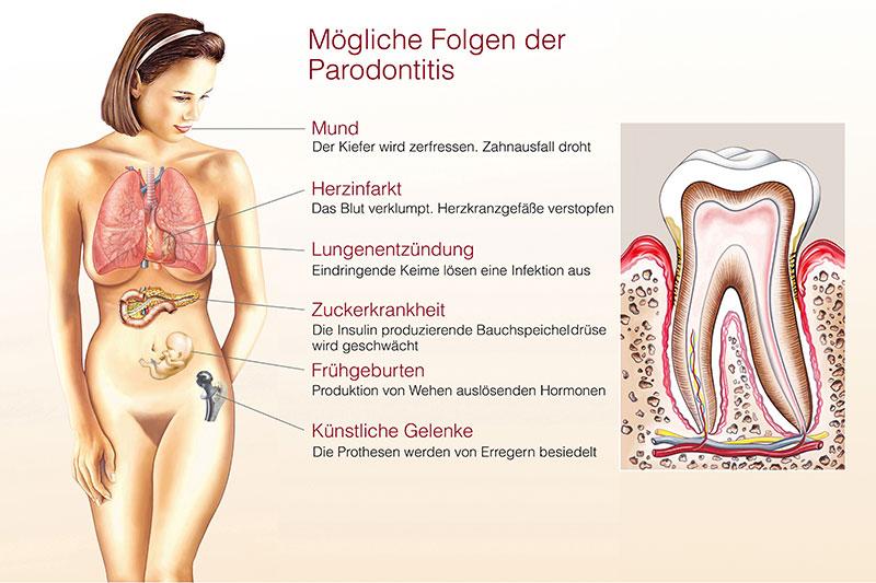 Parodontologie unterschleissheim muenchen zahnarzt 2 - Parodontologie