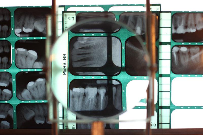 Wurzelbehandlung unterschleissheim muenchen zahnarzt - Endodontics