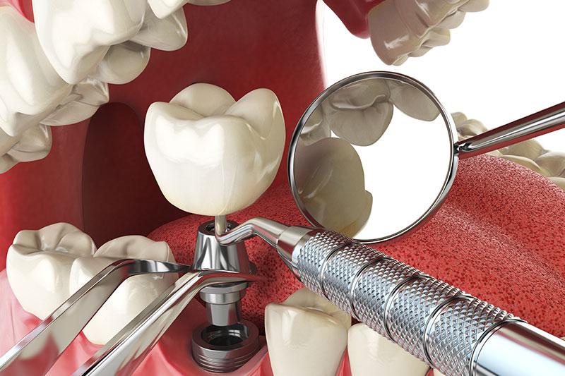 implantat unterschleissheim muenchen zahnarzt 3 - Implantate