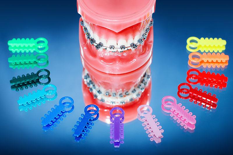 kieferorthopaedie unterschleissheim muenchen zahnarzt 2 - Orthodontics