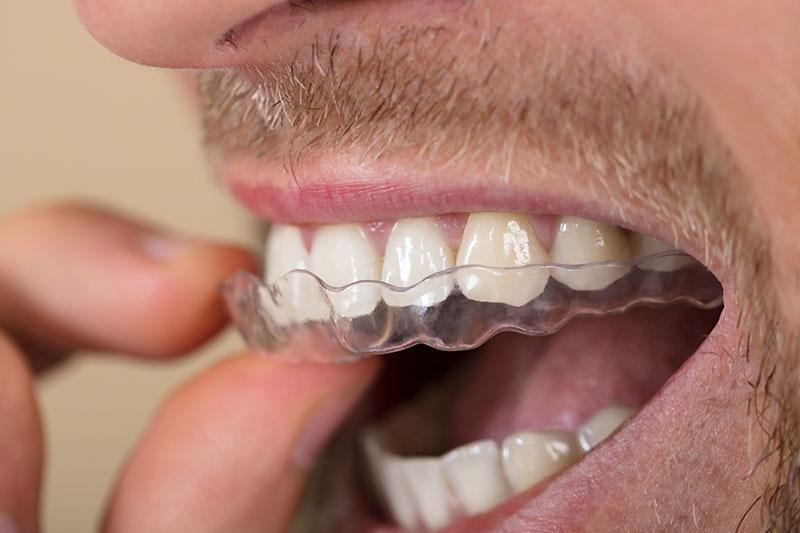 kieferorthopaedie unterschleissheim muenchen zahnarzt - Orthodontics