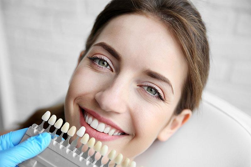 veneers unterschleissheim muenchen zahnarzt 000 - Teeth Whitening