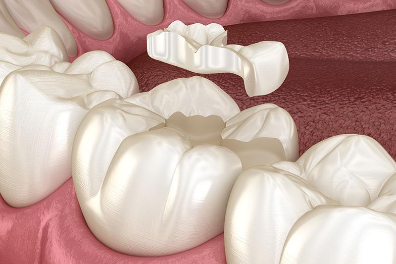 zahnfuellung unterschleissheim muenchen zahnarzt 3 - Zahnfüllung