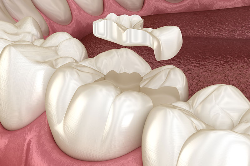 zahnfuellung unterschleissheim muenchen zahnarzt 3 - Fillings