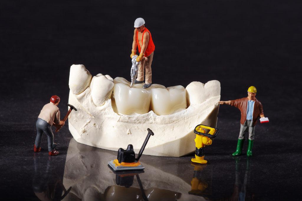 zahnfüllung unterschleissheim muenchen zahnarzt 03 1024x683 - Fillings